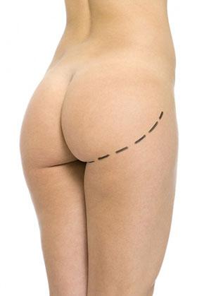 Agrandar los glúteos cirugia